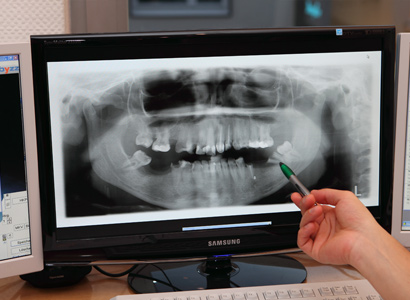 Behandlungsspektrum » Digitales Röntgen